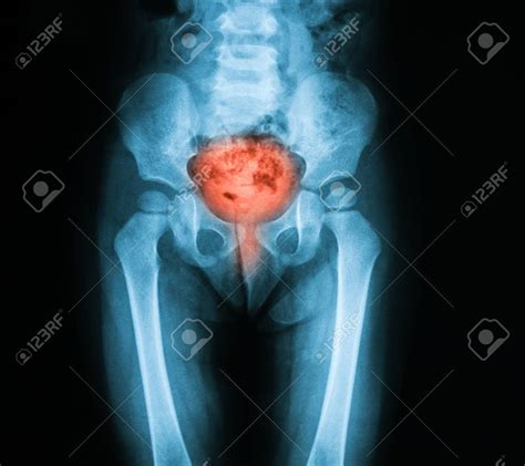 infection du tractus urinaire - Incontinence Adulte
