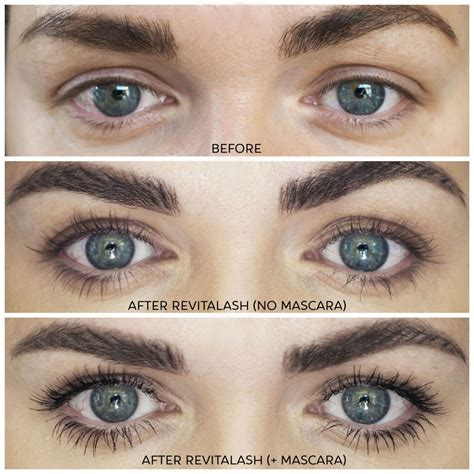 Revitalash Advanced Lash Growth Serum : Full Review with