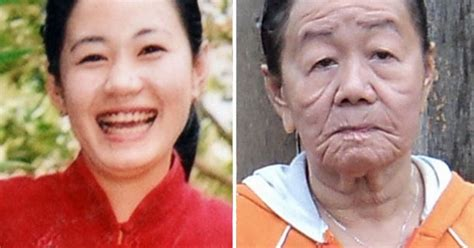 Young woman ages 50 years in days with mystery skin
